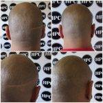 scar-repair-florida (6)