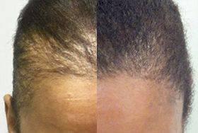 female-scalp-pigmentation