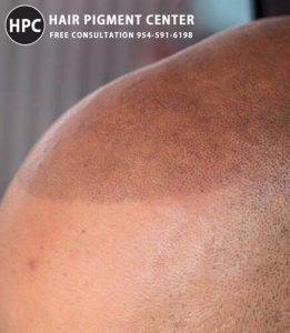 Hair Follicle Replication For Balding
