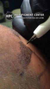 Hair Tattoo Micropigmentation For Balding