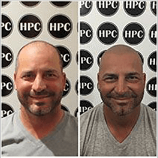 HPC Scalp MicroPigmentation Center