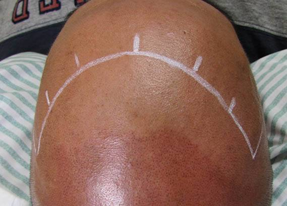 Scalp MicroPigmentation Training Courses