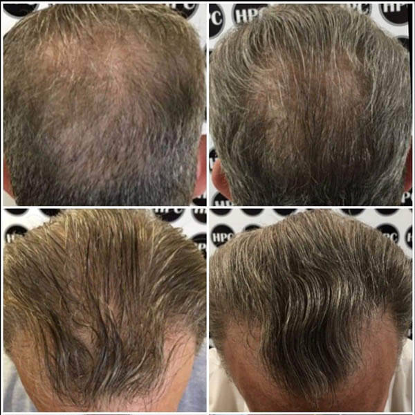 HPC Scalp MicroPigmentation Center